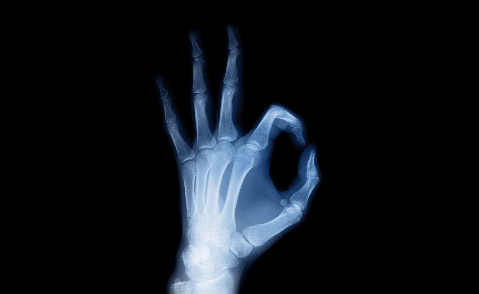 hand,-knochen,-rontgen-228494.jpg?no-logo